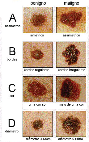 regra do ABCD no melanoma